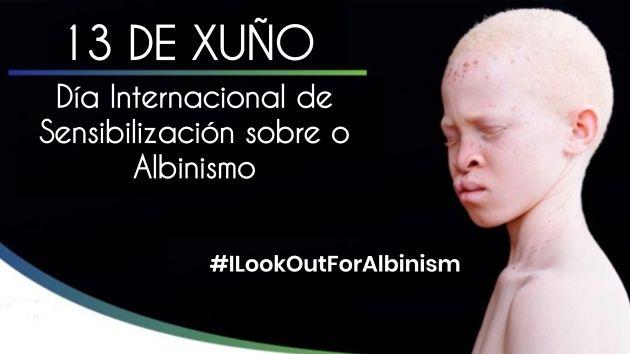 Día Internacional de Sensibilización sobre o Albinismo_ilcanallarubens_noticiasvigo.es_Vigo_2018